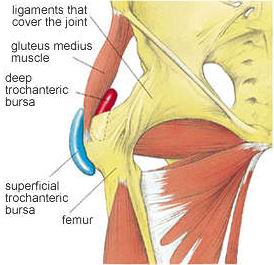 Trochanteric Bursitis. Swelling around the side of the hip
